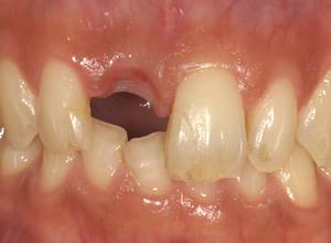 ②抜歯後です。